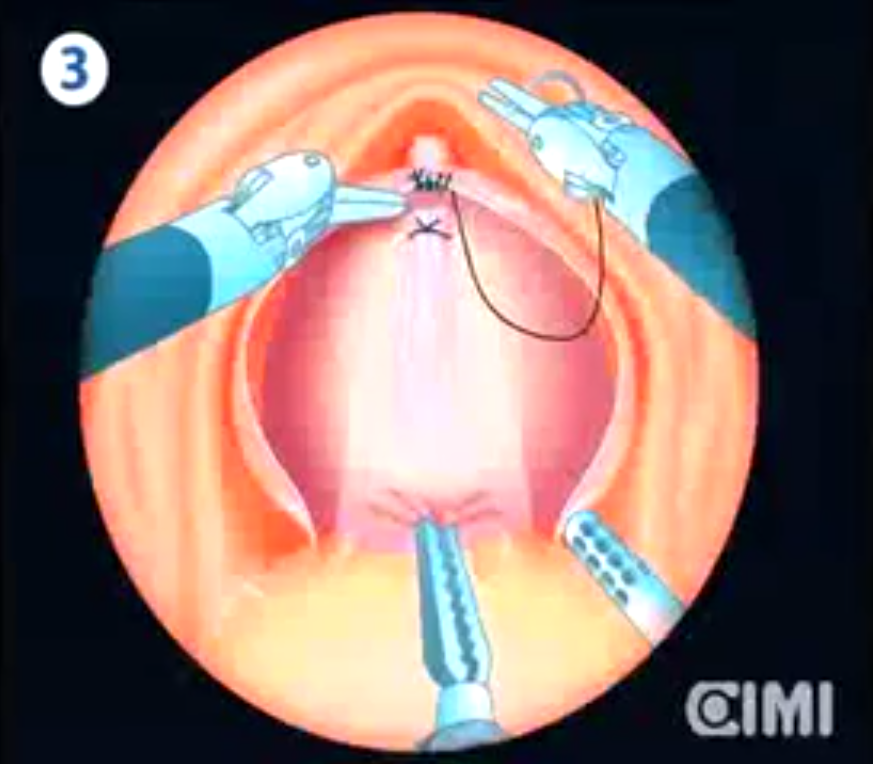 Robotic Intra Fascial Simple Prostatectomy Novel Technique Dr