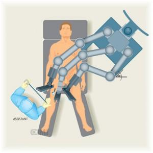 Regioninginal-para estudiar la extension del cancer de pene-colocacion del robot para hacer la linfadenectomia