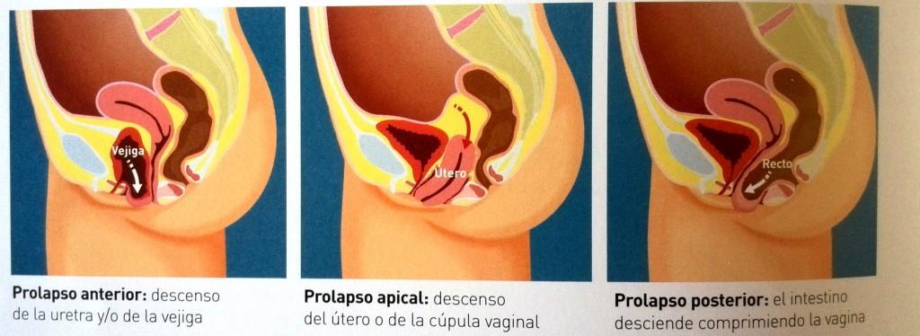 prolapso-genital-2