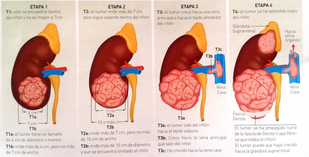 Estadios Cáncer Riñón - Nefrectomía parcial