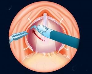 Boceto1-Facias previo a sutura de vasos