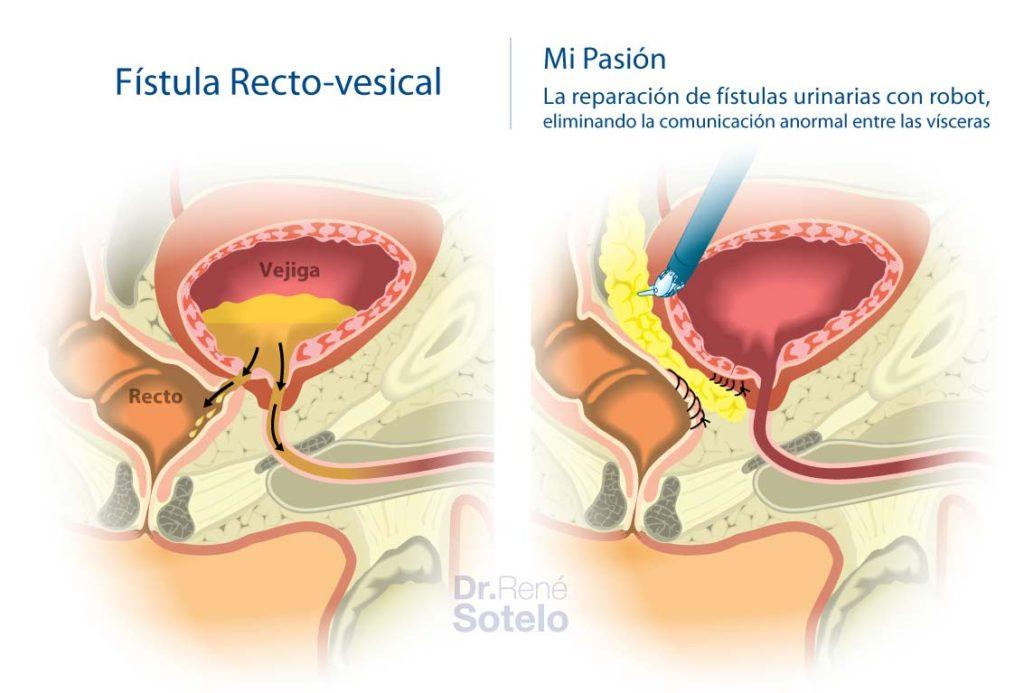 fistula-recto-vesical