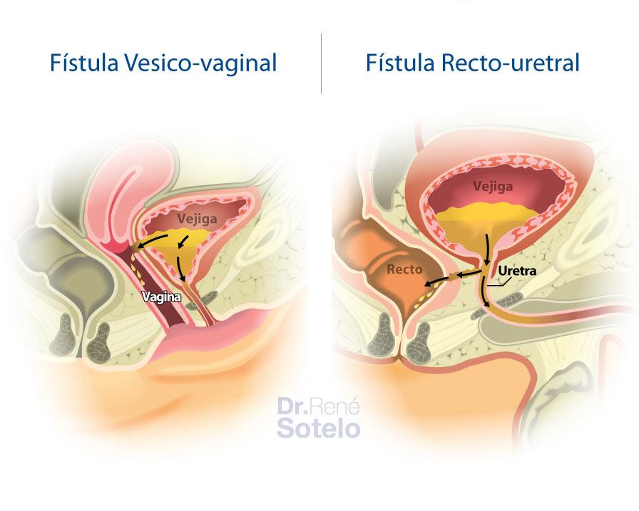 fistulasvesicovaginal-rectouretra
